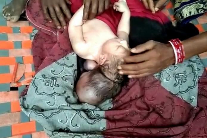 В Индии родился трехглавый младенец