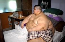Самый толстый мужчина в мире лег под нож