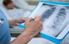 В Узбекистане показатель выздоровления от пневмонии превысил 92% - Минздрав