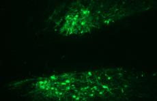 Ученые определили рецепторы мозга, которые могут провоцировать алкоголизм